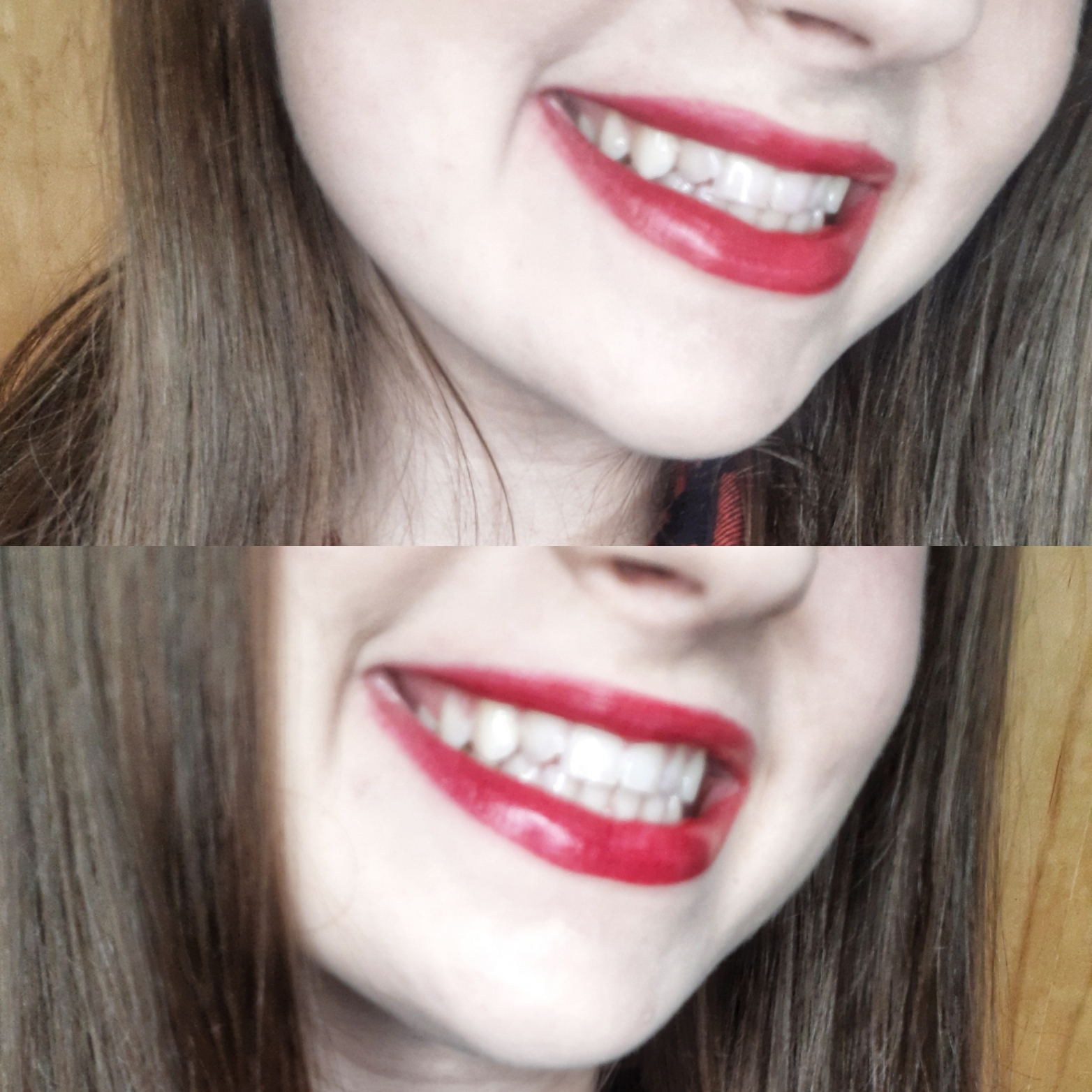 izbjeljivanje zuba hello smile olovka
